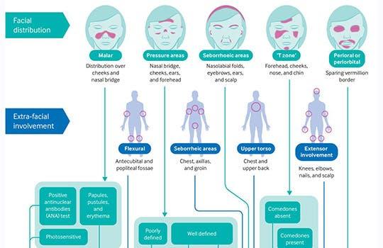 "Facial distribution of ""maskne"""